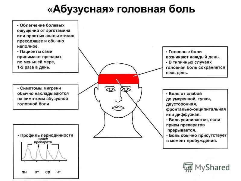 « Абузусная» головная боль