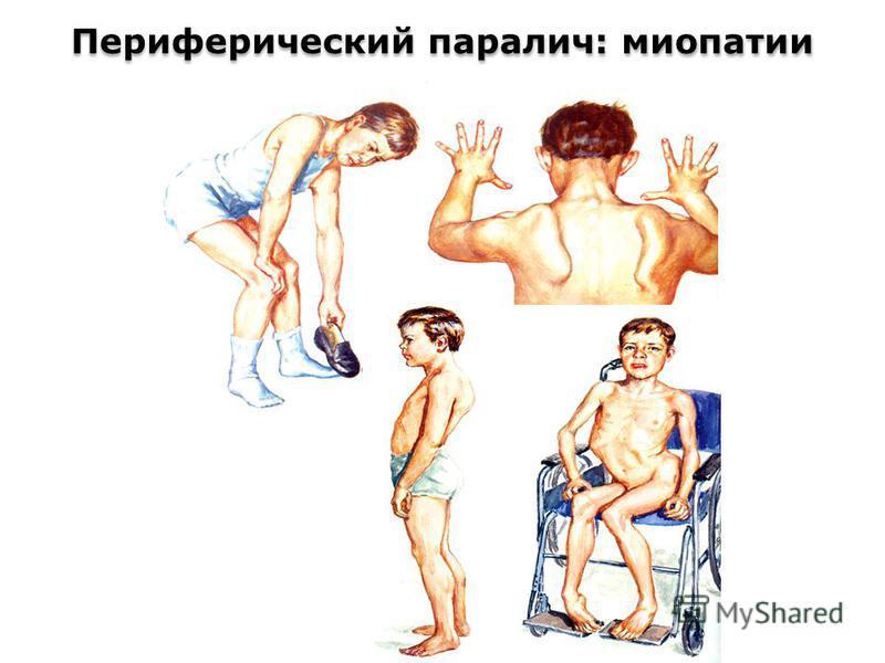 Периферический паралич: миопатии