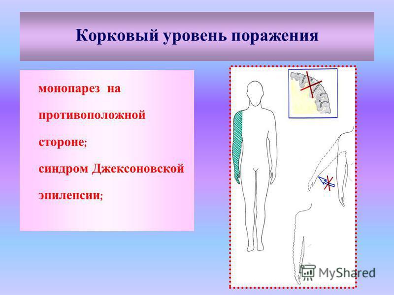 Корковый уровень поражения монопарез на противоположной стороне ; синдром Джексоновской эпилепсии ;