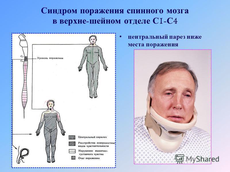 Синдром поражения спинного мозга в верхние - шейном отделе С 1- С 4 центральный парез ниже места поражения