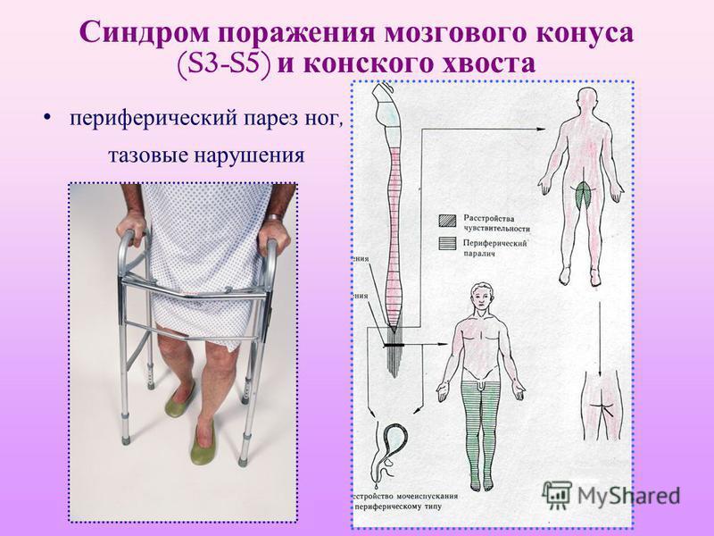 Синдром поражения мозгового конуса (S3-S5) и конского хвоста периферический парез ног, тазовые нарушения