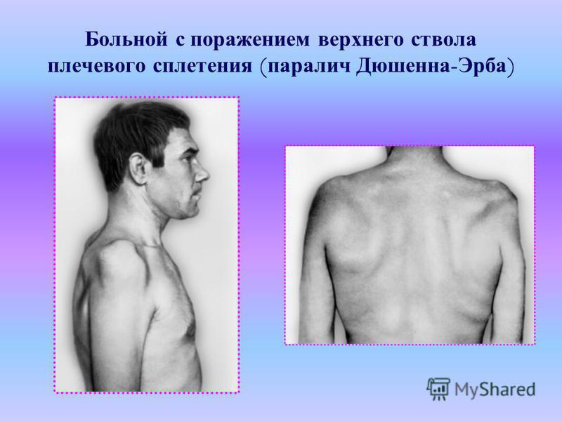 Больной с поражением верхниего ствола плечевого сплетения ( паралич Дюшенна - Эрба )