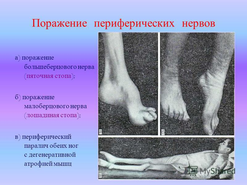 Поражение периферических нервов а ) поражение большеберцового нерва ( пяточная стопа ); б ) поражение малоберцового нерва ( лошадиная стопа ); в ) периферический паралич обеих ног с дегенеративной атрофией мышц