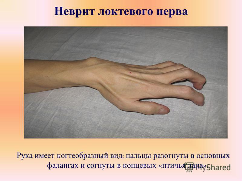 Неврит локтевого нерва Рука имеет когтеобразный вид : пальцы разогнуты в основных фалангах и согнуты в концевых « птичья лапа ».
