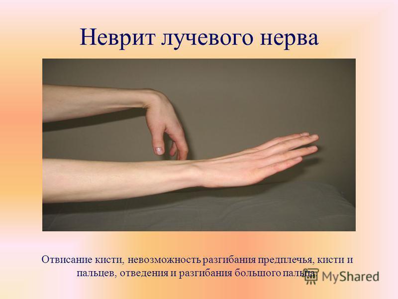 Неврит лучевого нерва Отвисание кисти, невозможность разгибания предплечья, кисти и пальцев, отведения и разгибания большого пальца.