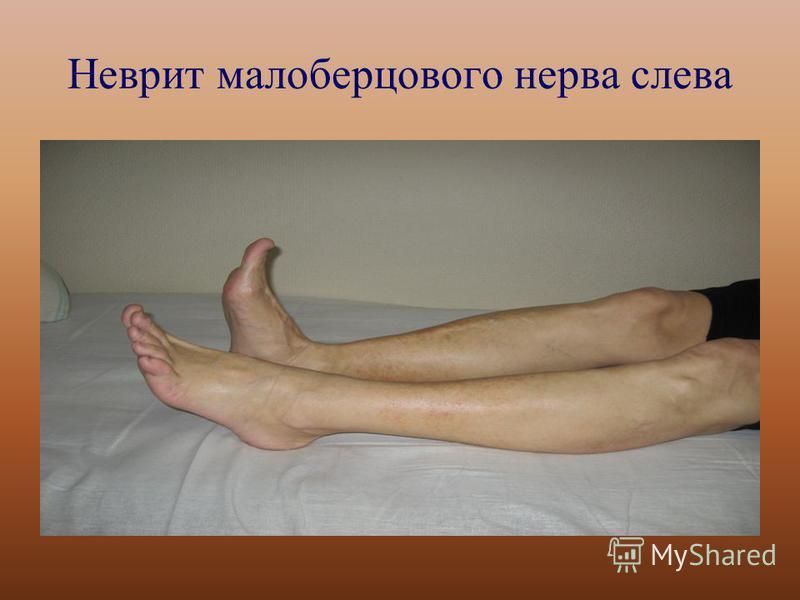 Неврит малоберцового нерва слева