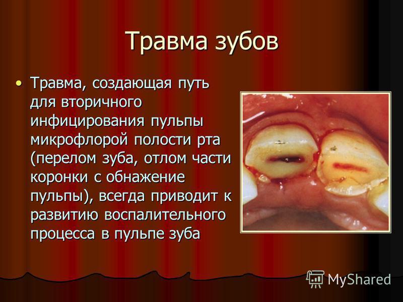 Травма зубов Травма, создающая путь для вторичного инфицирования пульпы микрофлорой полости рта (перелом зуба, ккккотлом части коронки с обнажение пульпы), всегда приводит к развитию воспалительного процесса в пульпе зуба Травма, создающая путь для в