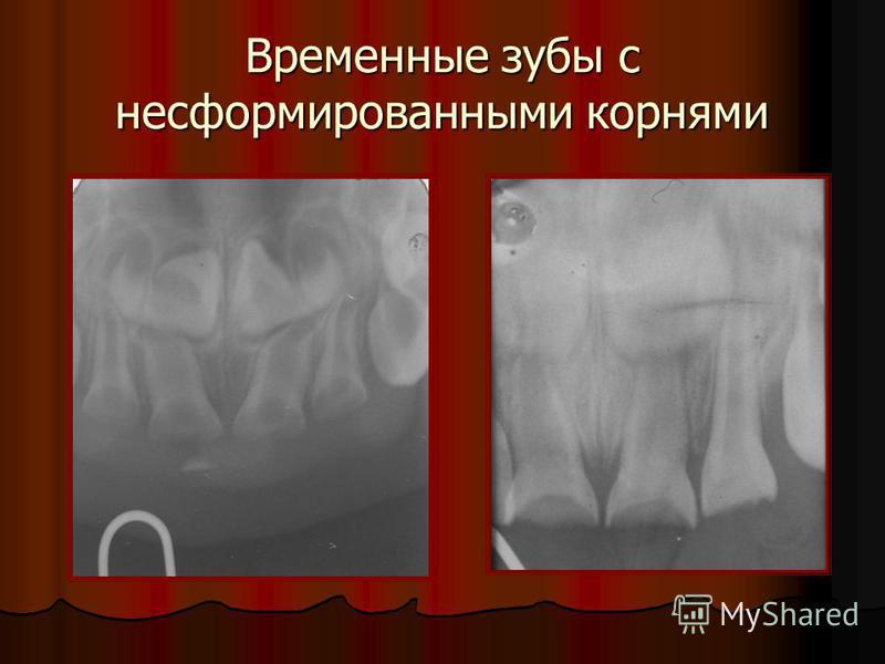 Временные зубы с несформированными корнями