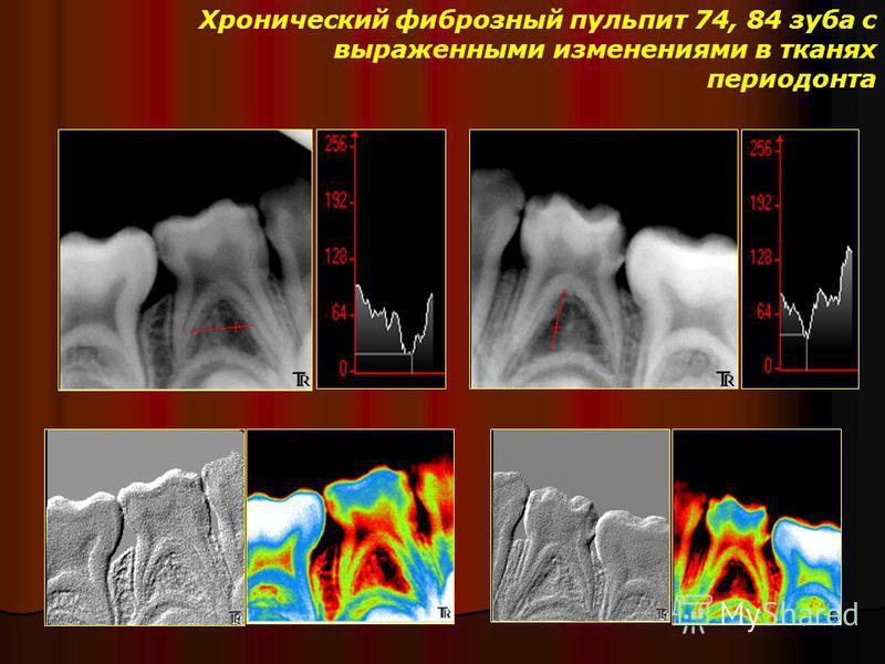 Хронический фиброзный пульпит 74, 84 зуба с выраженными изменениями в тканях периодонта