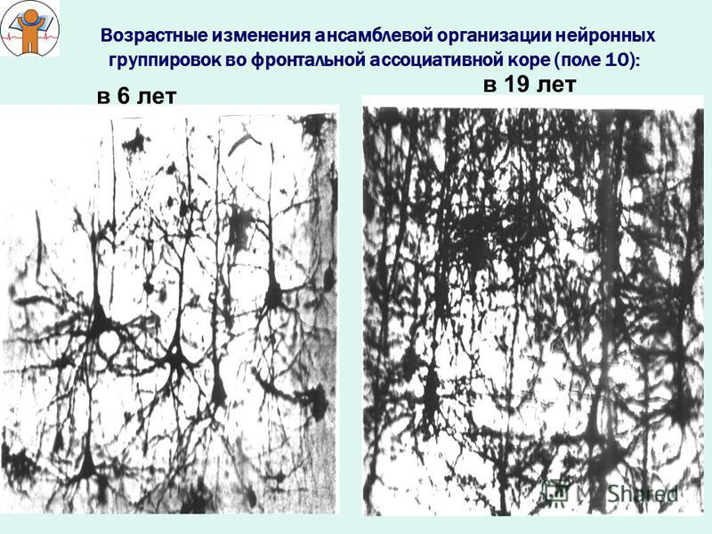 Возрастные изменения ансамблевой организации нейронных группировок во фронтальной ассоциативной коре (поле 10): в 6 лет в 19 лет