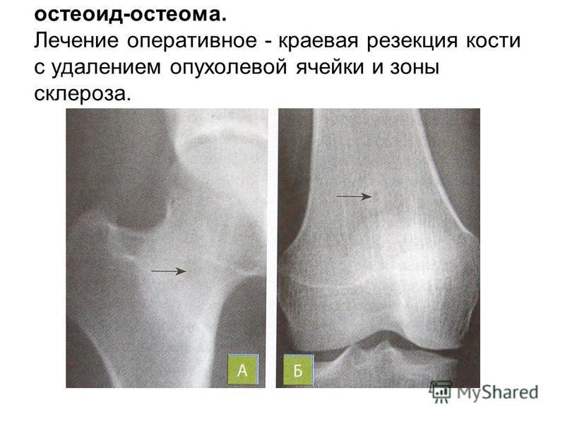 остеоид-остеома. Лечение оперативное - краевая резекция кости с удалением опухолевой ячейки и зоны склероза.