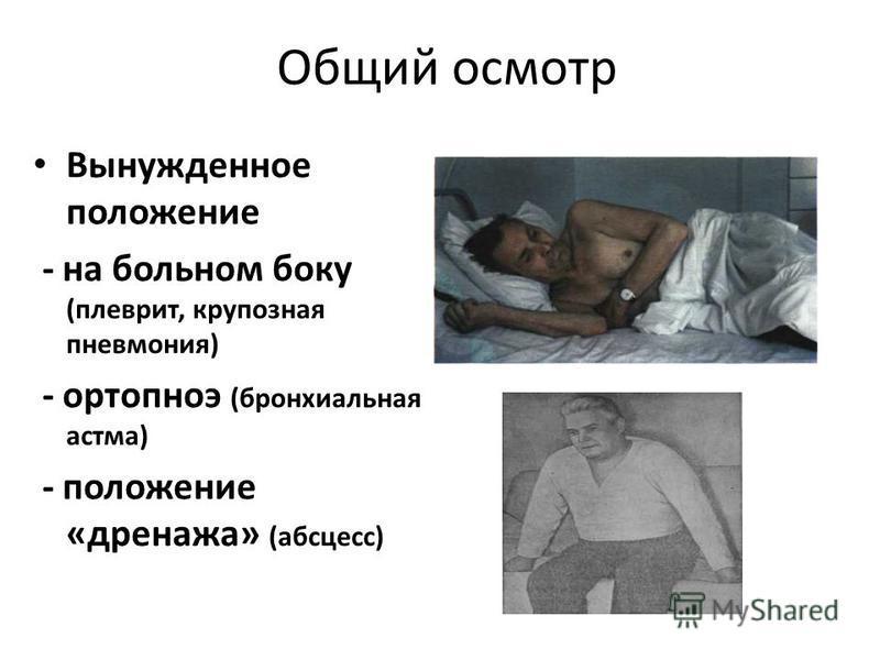 Общий осмотр Вынужденное положение - на больном боку (плеврит, крупозная пневмония) - ортопноэ (бронхиальная астма) - положение «дренажа» (абсцесс)