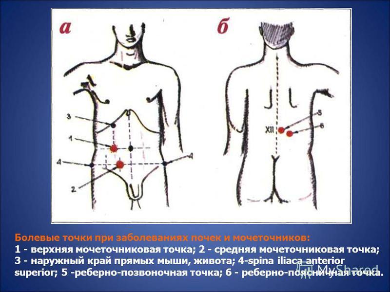 Болевые точки при заболеваниях почек и мочеточников: 1 - верхняя мочеточниковая точка; 2 - средняя мочеточниковая точка; 3 - наружный край прямых мыши, живота; 4-spina iliaca anterior superior; 5 -реберно-позвоночная точка; 6 - реберно-поясничная точ