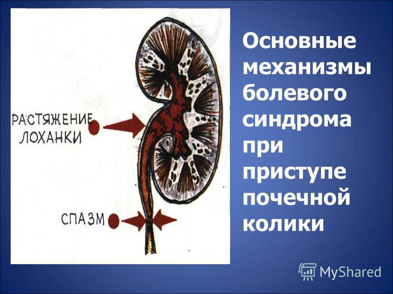 Основные механизмы болевого синдрома при приступе почечной колики