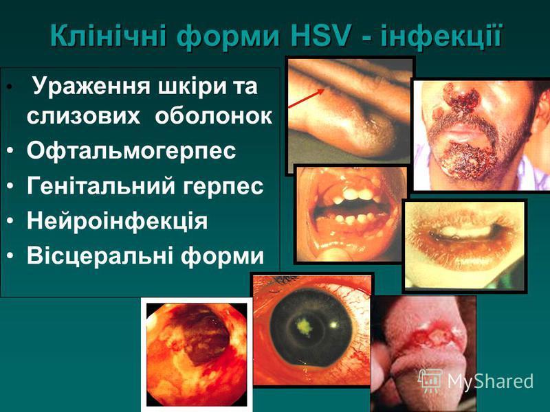 Клінічні форми HSV - інфекції Ураження шкіри та слизових оболонок Офтальмогерпес Генітальний герпес Нейроінфекція Вісцеральні форми