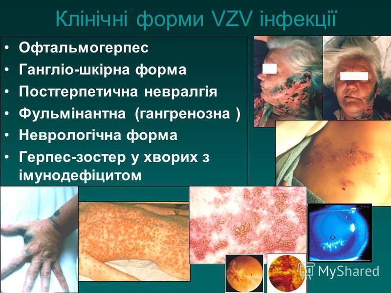 Офтальмогерпес Гангліо-шкірна форма Постгерпетична невралгія Фульмінантна (гангренозна ) Неврологічна форма Герпес-зостер у хворих з імунодефіцитом Клінічні форми VZV інфекції