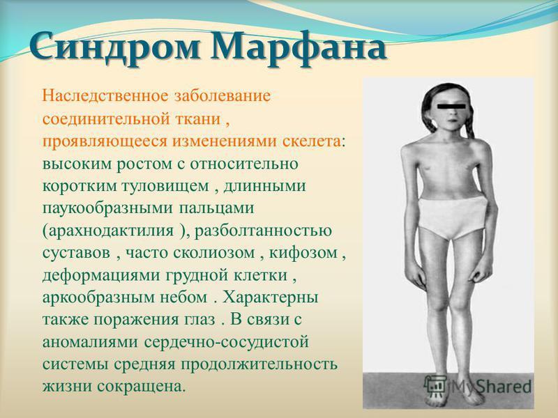 Синдром Марфана Наследственное заболевание соединительной ткани, проявляющееся изменениями скелета: высоким ростом с относительно коротким туловищем, длинными паукообразными пальцами (арахнодактилия ), разболтанностью суставов, часто сколиозом, кифоз