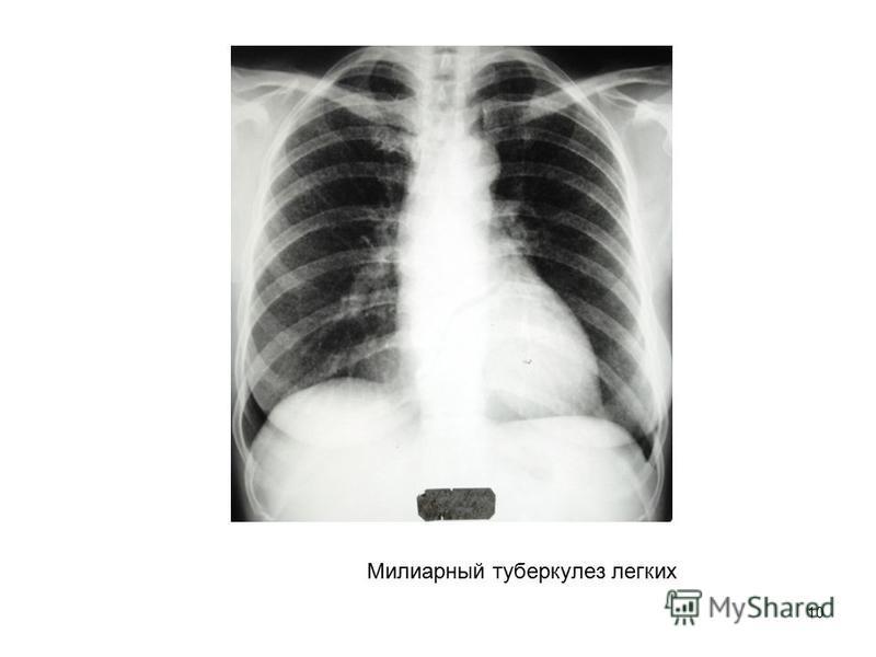 10 Милиарный туберкулез легких