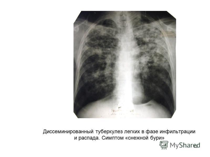 12 Диссеминированный туберкулез легких в фазе инфильтрации и распада. Симптом «снежной бури»