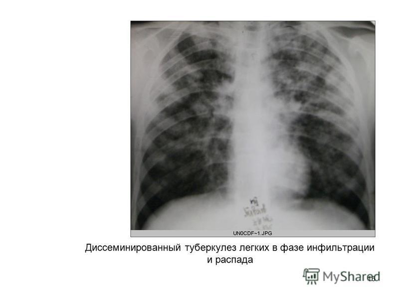 16 Диссеминированный туберкулез легких в фазе инфильтрации и распада
