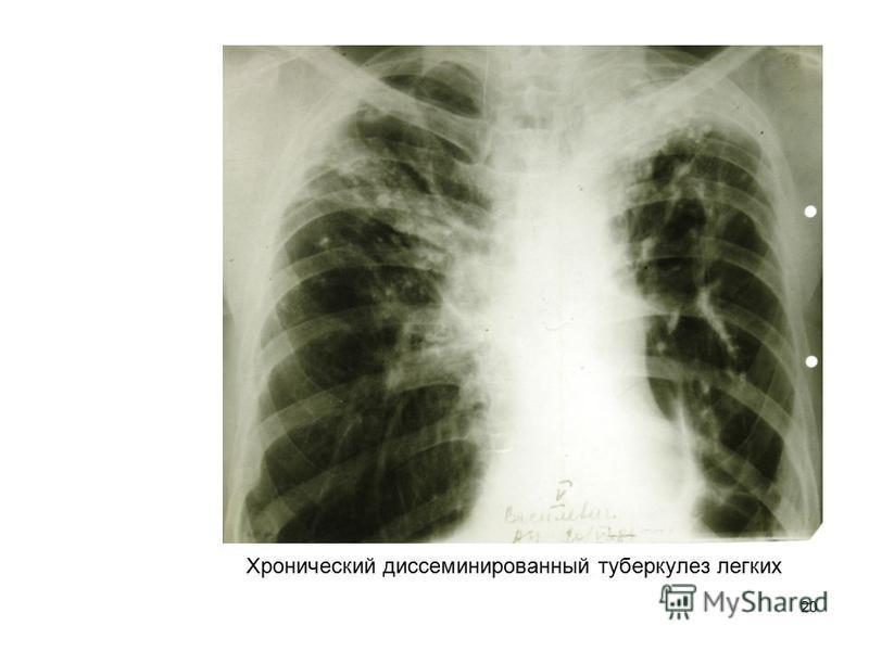 20 Хронический диссеминированный туберкулез легких