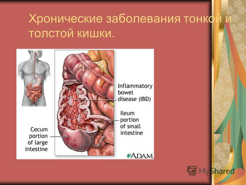 Хронические заболевания тонкой и толстой кишки.