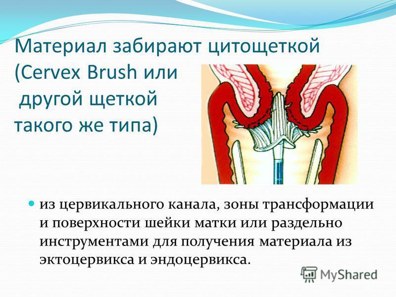 Материал забирают цитощеткой (Cervеx Brush или другой щеткой такого же типа) из цервикального канала, зоны трансформации и поверхности шейки матки или раздельно инструментами для получения материала из эктоцервикса и эндоцервикса.