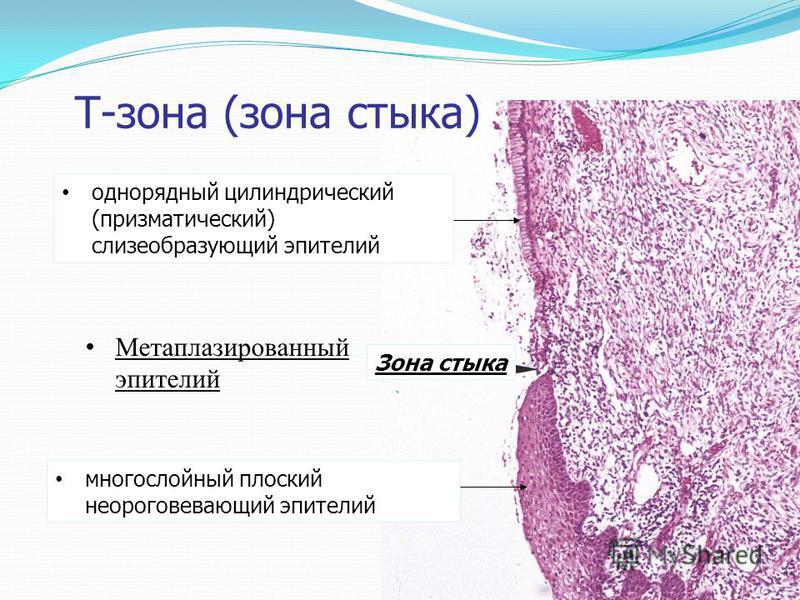 Т-зона (зона стыка) однорядный цилиндрический (призматический) слизеобразующий эпителий многослойный плоский неороговевающий эпителий Зона стыка Метаплазированный эпителий