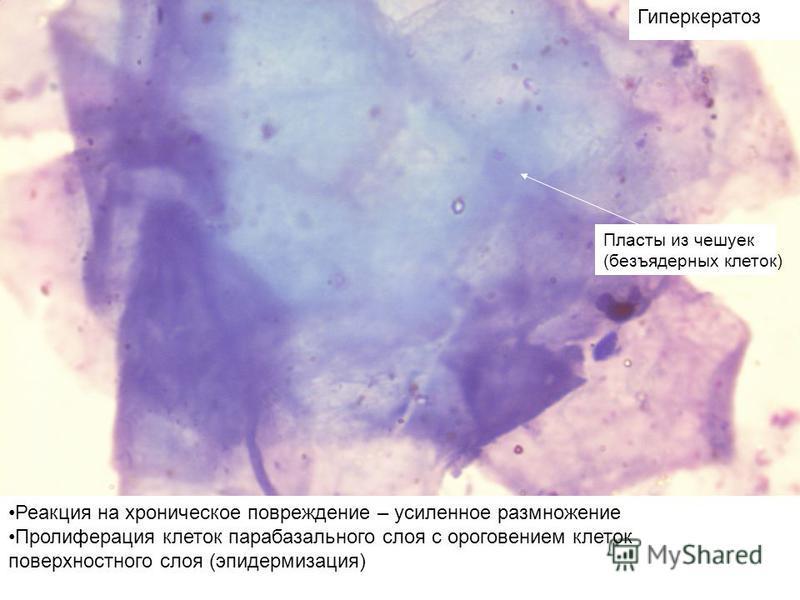 Гиперкератоз Реакция на хроническое повреждение – усиленное размножение Пролиферация клеток парабазального слоя с ороговением клеток поверхностного слоя (эпидермизация) Пласты из чешуек (безъядерных клеток)