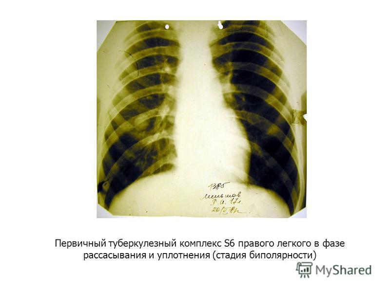 Первичный туберкулезный комплекс S6 правого легкого в фазе рассасывания и уплотнения (стадия биполярности)