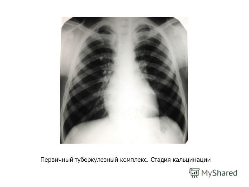 Первичный туберкулезный комплекс. Стадия кальцинации