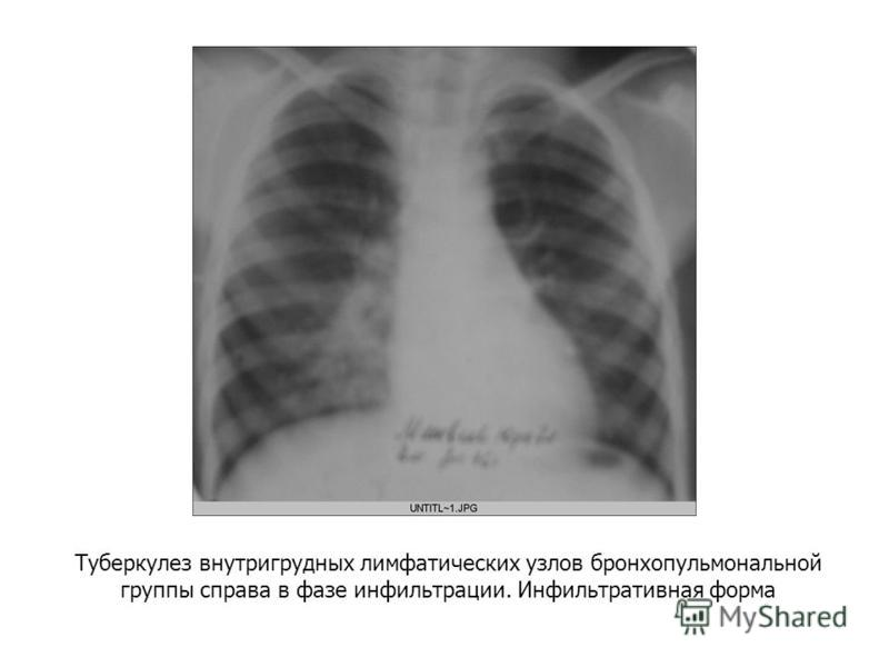 Туберкулез внутригрудных лимфатических узлов бронхопульмональной группы справа в фазе инфильтрации. Инфильтративная форма