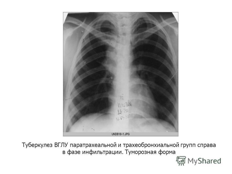 Туберкулез ВГЛУ паратрахеальной и трахеобронхиальной групп справа в фазе инфильтрации. Туморозная форма