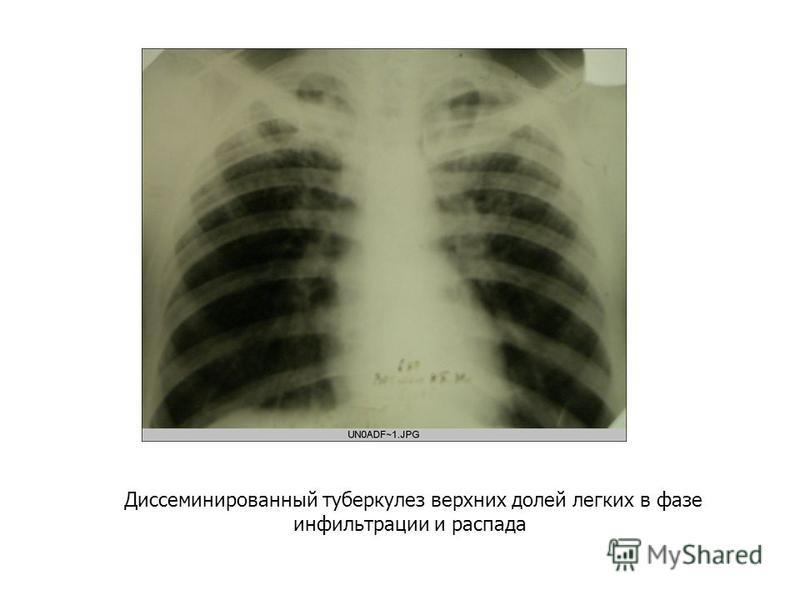 Диссеминированный туберкулез верхних долей легких в фазе инфильтрации и распада