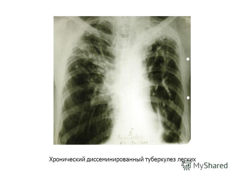 Хронический диссеминированный туберкулез легких