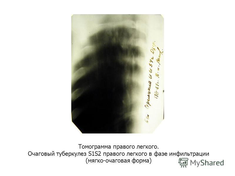 Томограмма правого легкого. Очаговый туберкулез S1S2 правого легкого в фазе инфильтрации (мягко-очаговая форма)