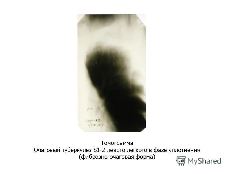 Томограмма Очаговый туберкулез S1-2 левого легкого в фазе уплотнения (фиброзно-очаговая форма)