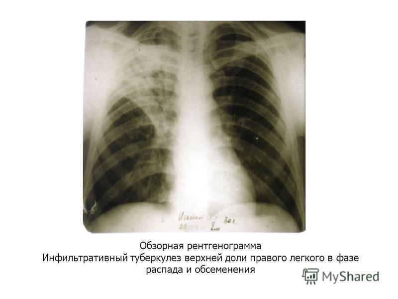 Обзорная рентгенограмма Инфильтративный туберкулез верхней доли правого легкого в фазе распада и обсеменения