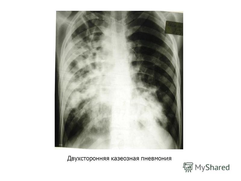 Двухсторонняя казеозная пневмония