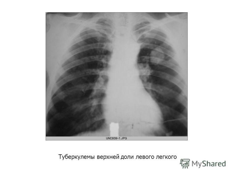 Туберкулемы верхней доли левого легкого