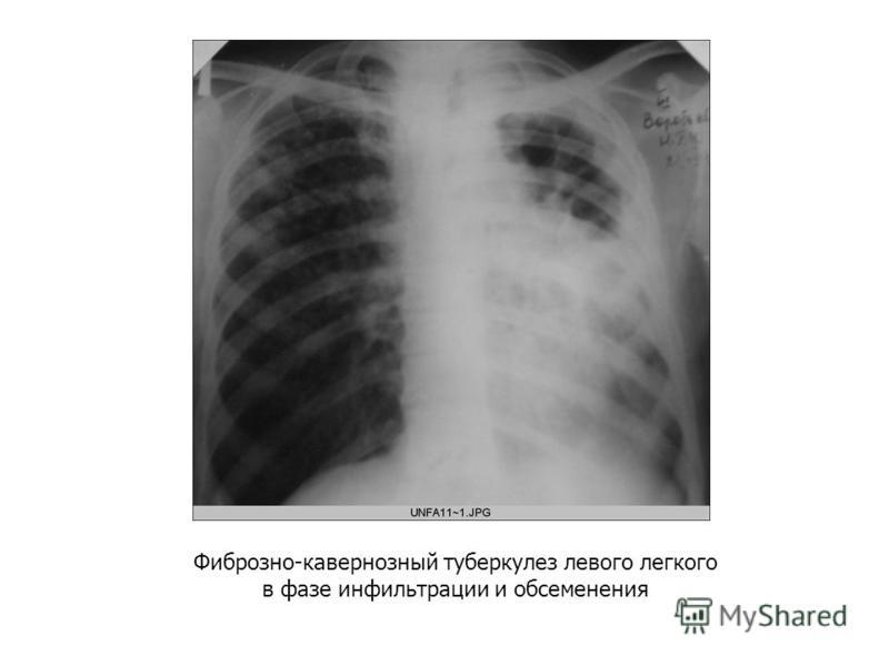 Фиброзно-кавернозный туберкулез левого легкого в фазе инфильтрации и обсеменения