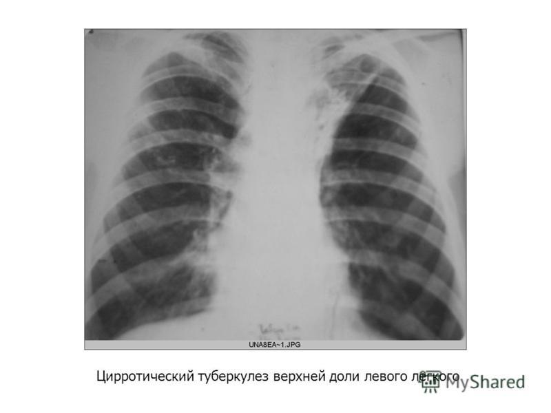 Цирротический туберкулез верхней доли левого легкого