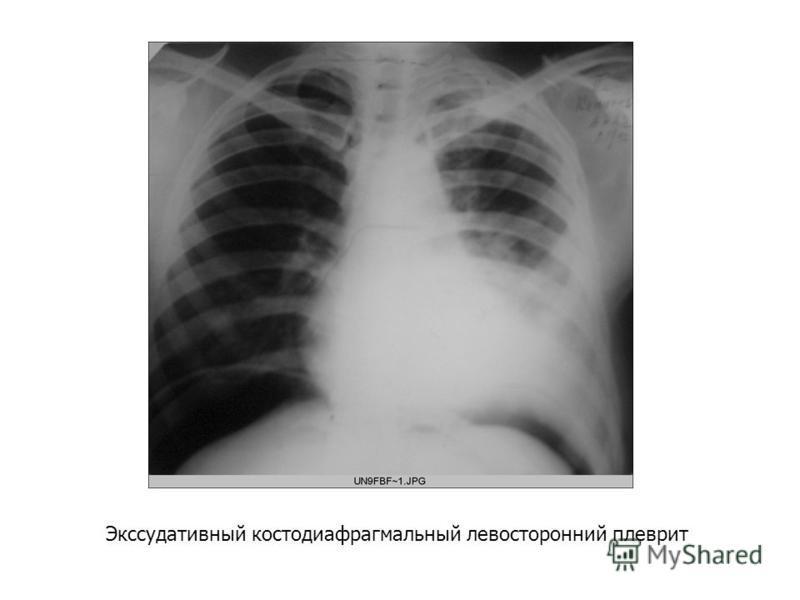 Экссудативный костодиафрагмальный левосторонний плеврит