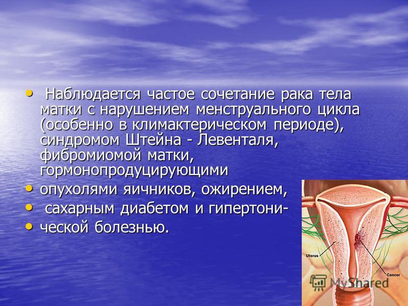 Наблюдается частое сочетание рака тела матки с нарушением менструального цикла (особенно в климактерическом периоде), синдромом Штейна - Левенталя, фибромиомой матки, гормонопродуцирующими Наблюдается частое сочетание рака тела матки с нарушением мен