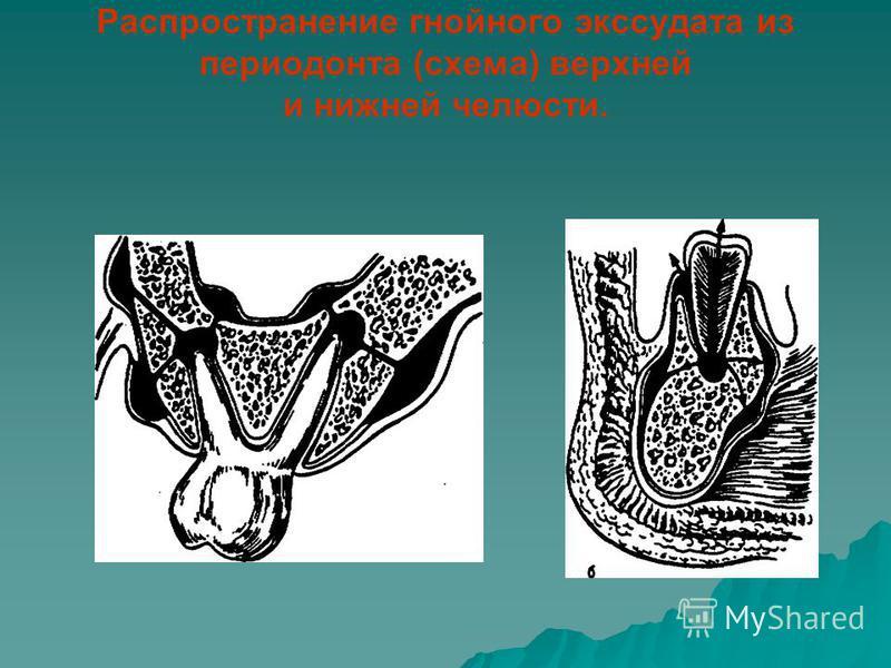 Распространение гнойного экссудата из периодонта (схема) верхней и нижней челюсти.