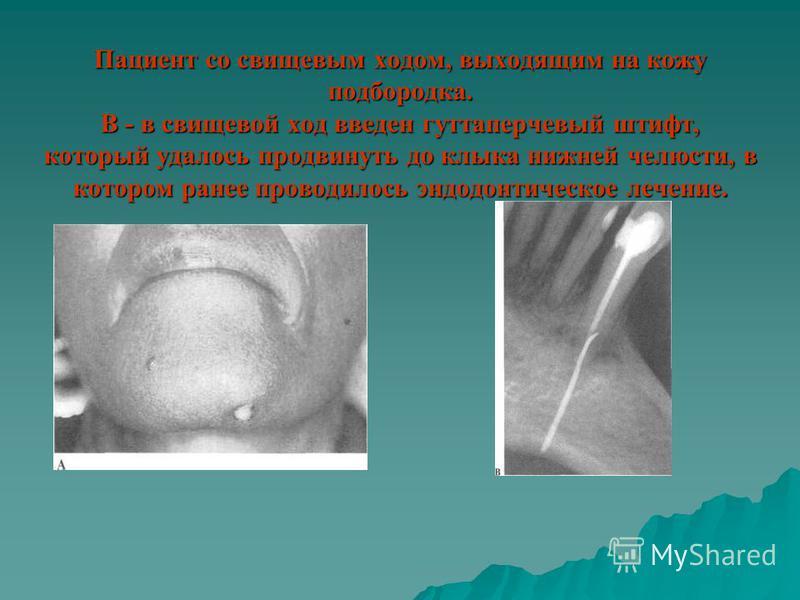 Пациент со свищевым ходом, выходящим на кожу подбородка. В - в свищевой ход введен гуттаперчевый штифт, который удалось продвинуть до клыка нижней челюсти, в котором ранее проводилось эндодонтическое лечение.