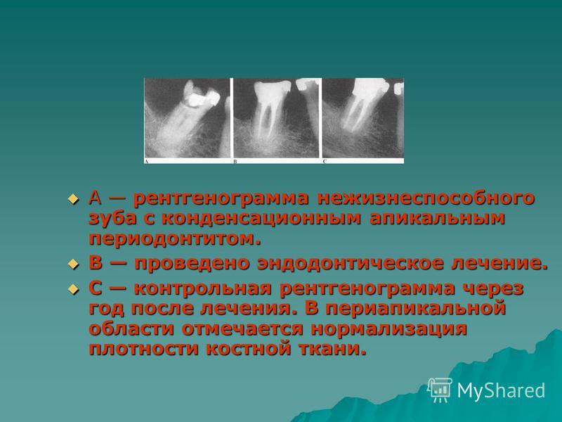 А рентгенограмма нежизнеспособного зуба с конденсационным апикальным периодонтитом. А рентгенограмма нежизнеспособного зуба с конденсационным апикальным периодонтитом. В проведено эндодонтическое лечение. В проведено эндодонтическое лечение. С контро