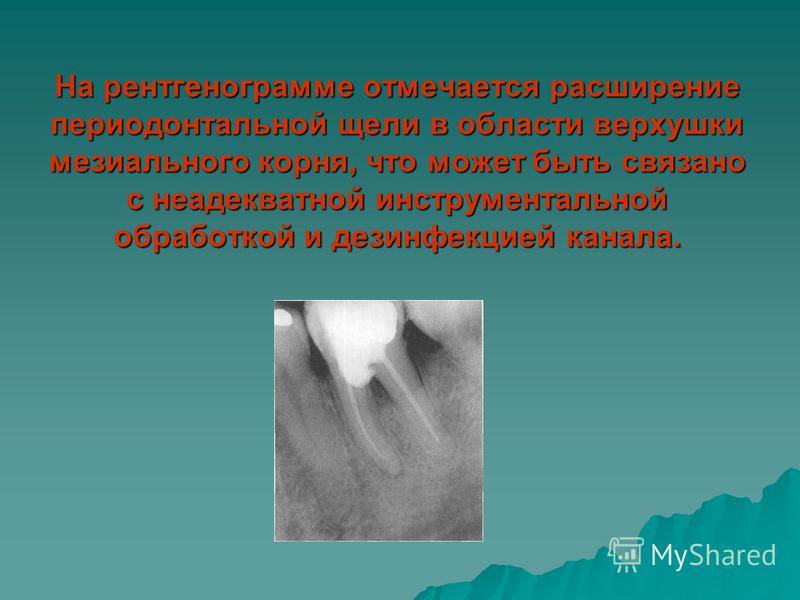 На рентгенограмме отмечается расширение периодонтальной щели в области верхушки мезиального корня, что может быть связано с неадекватной инструментальной обработкой и дезинфекцией канала.