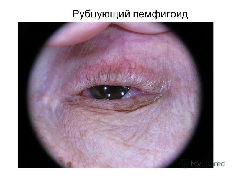 Рубцующий пемфигоид