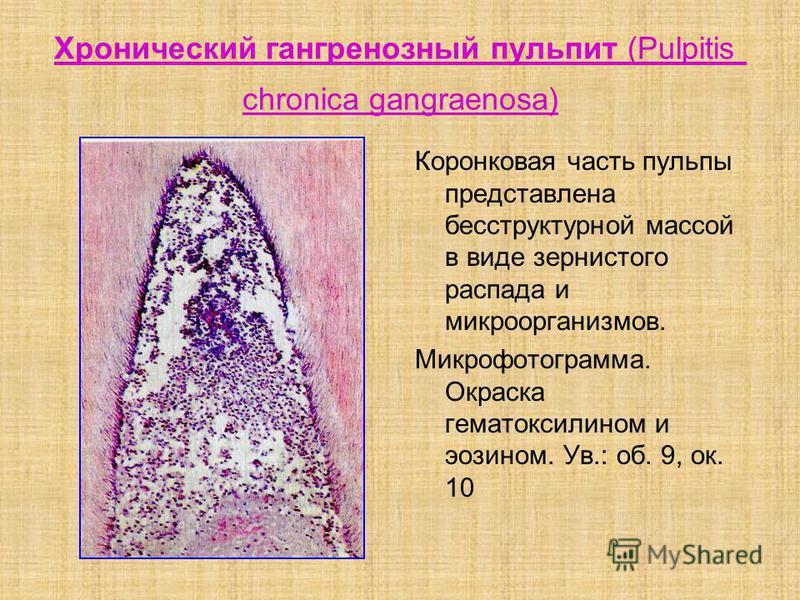 Хронический гангренозный пульпит (Pulpitis chronica gangraenosa) Коронковая часть пульпы представлена бесструктурной массой в виде зернистого распада и микроорганизмов. Микрофотограмма. Окраска гематомсилином и эозином. Ув.: об. 9, ок. 10